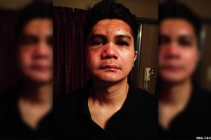 vhong navarro assaulted