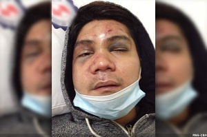vhong navarro attacked